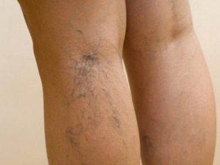Вены от нагрузок на ноги и из-за нарушенного обмена веществ