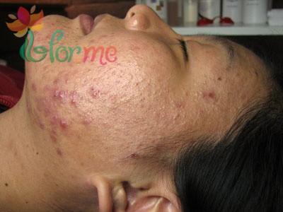 acne6
