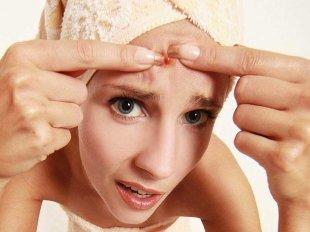 Соблюдение гигиены – основное правило, если акне удалять таким способом