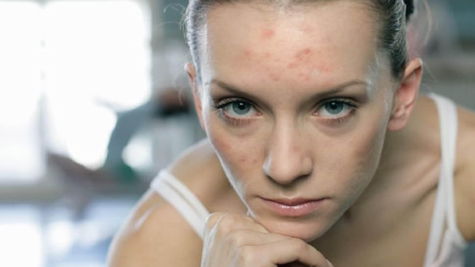 Плохая кожа у девушек фото