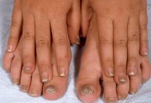 Причины возникновения грибка ногтя