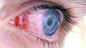 аллергены, содержащиеся в еде