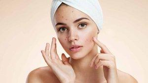 изучение соскоба кожи