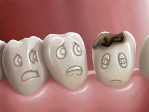 пигментация зубной эмали
