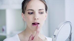 герпес на губах лечение быстро