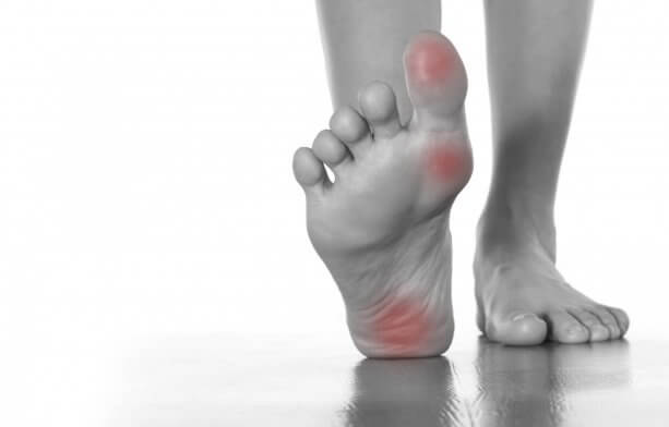 Шипица на ступне - как выглядит, почему появляется, лечение в домашних условиях