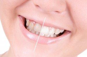 деструкция зубной эмали